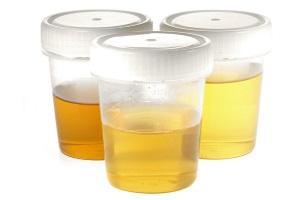 Der Urintest ist nur einer der unterschiedlichen Drogentests, die in Deutschland durchgeführt werden.